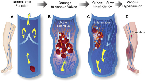 venousinsufficiency.jpg