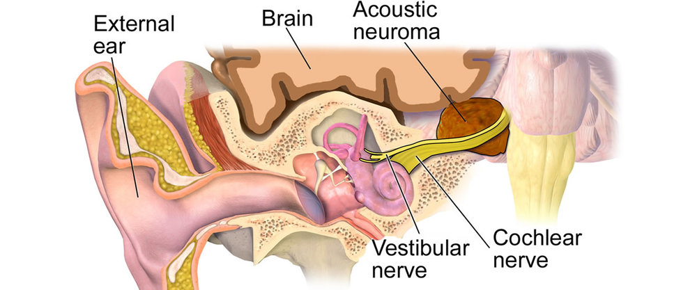 acousticneuroma.jpg