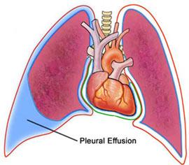 PleuralEffusion.jpg