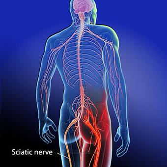 Sciatica and the Sciatic Nerve