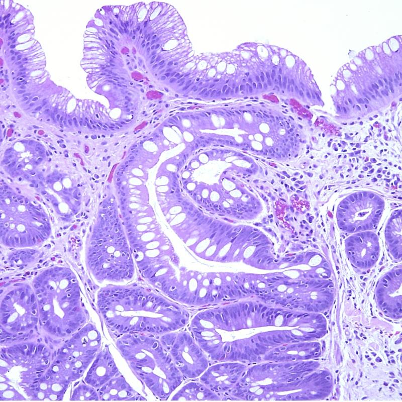 gradingprostatecancer.jpg