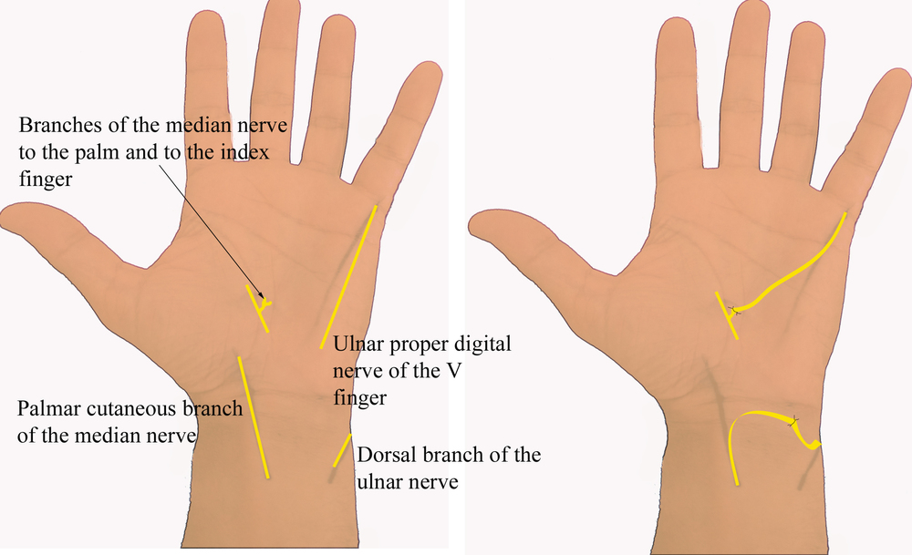 List of Synonyms and Antonyms of the Word: nerve damage in hand