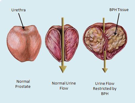 benignprostatichyperplasia.jpg