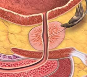 seedprostatecancer.jpg