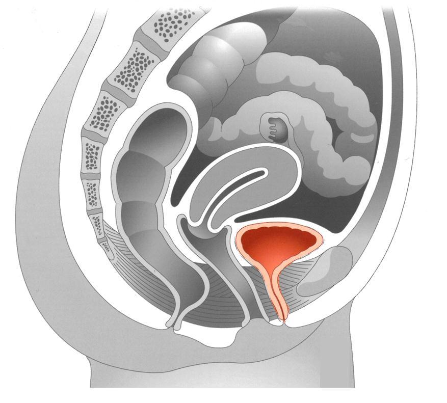 bladderoutletobstruction.jpg