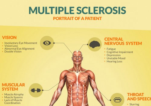 Multiple Sclerosis — Chiropractic Concept of Bellevue