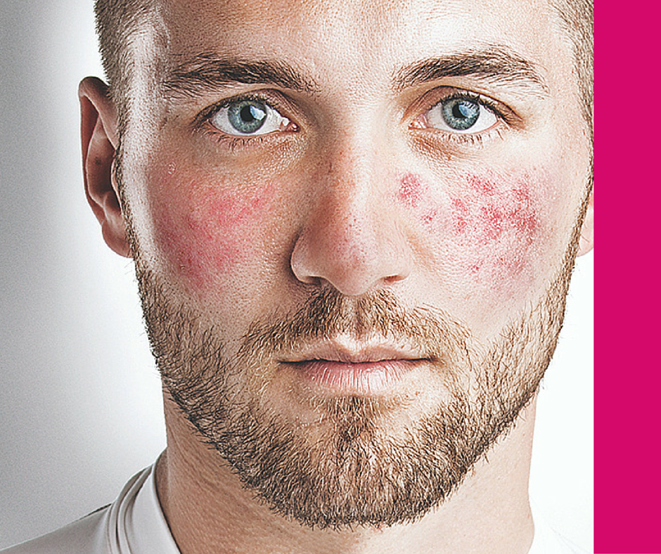 Natural Cure For Rosacea Skin Condition