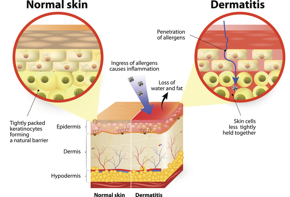 Does psoriasis raise the risk of diabetes? .jpg