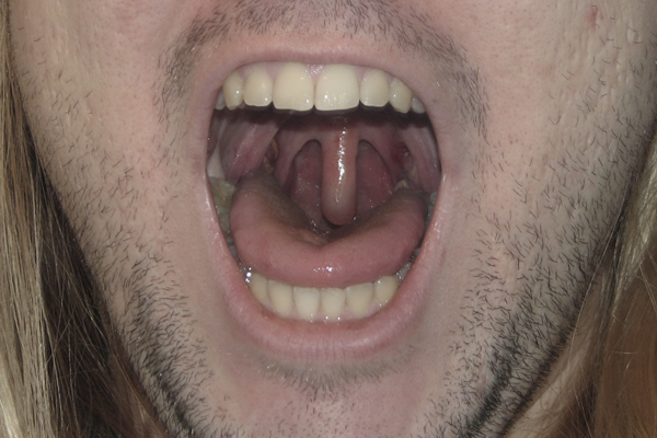 Me And My Freakish Uvula Chris Ames