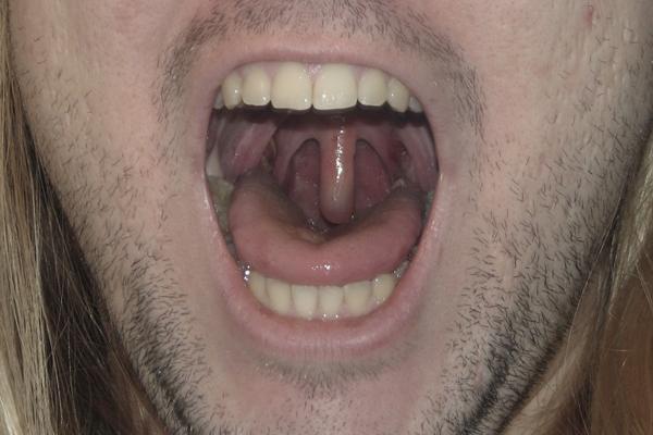 Me And My Freakish Uvula Chris Ames