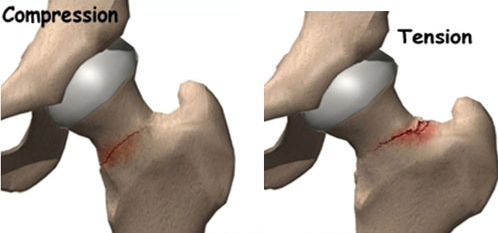 Running With Hip Pain Femoral Neck Stress Fractures