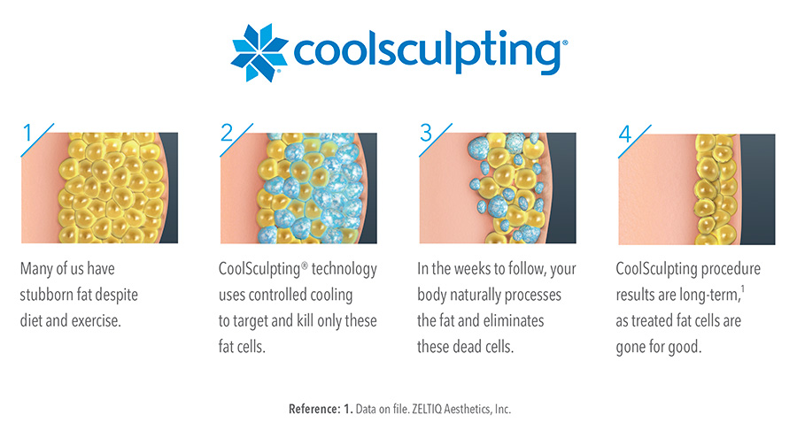 How CoolSculpting removes Fat Cells