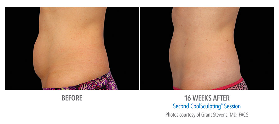 CoolSculpting before and after picture abdomen