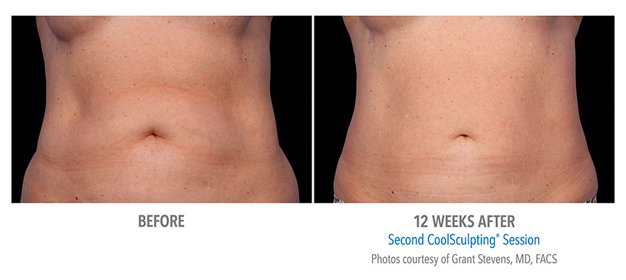 CoolSculpting fat reduction before and after abdomen