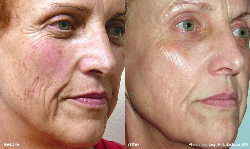 Laser Resurfacing-Harmony_laser360_1 Spa Thirty Five Boise Medical Spa.jpg
