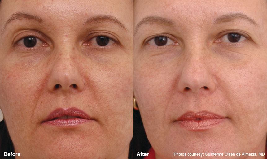 Laser Resurfacing Harmony_laser360_2 Spa Thirty Five Boise Medical Spa.jpg
