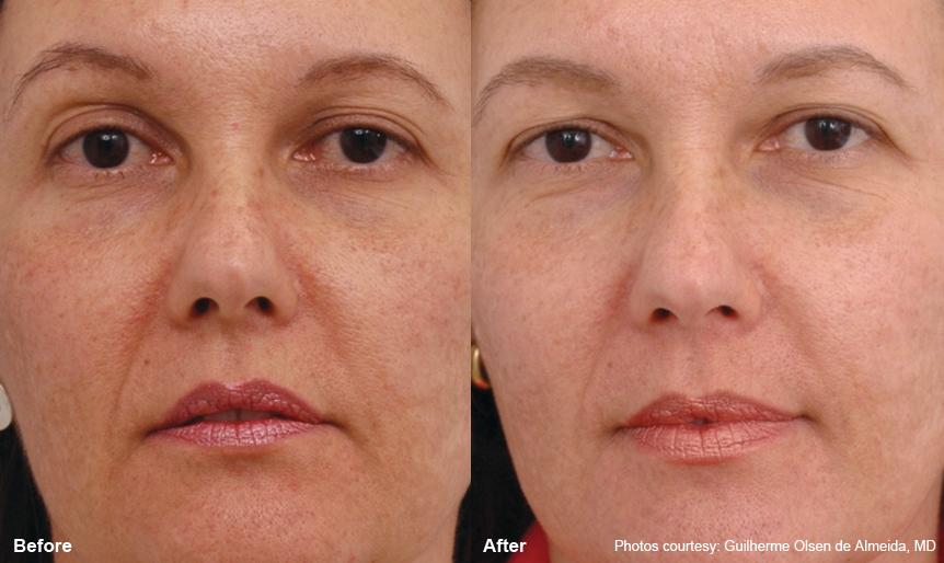 Laser Resurfacing Harmony_laser360_2 Spa Thirty Five Boise Medical Spa.jpg