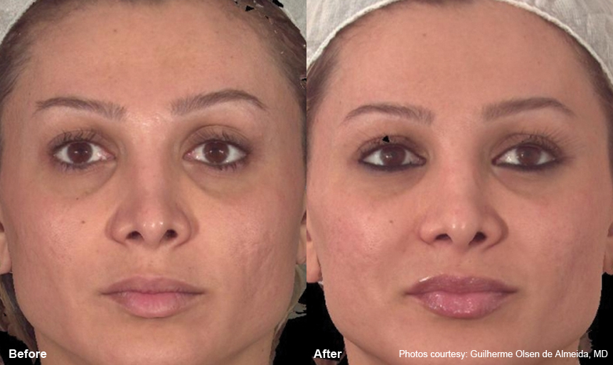 Laser Resurfacing Harmony_laser360_6 Spa Thirty Five Boise Medical Spa.jpg