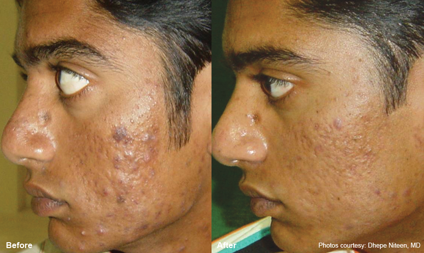 Laser Resurfacing Harmony_laser360_4 Spa Thirty Five Boise Medical Spa.jpg