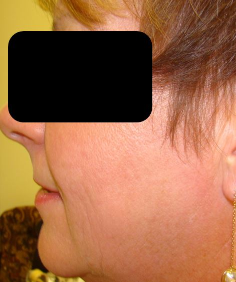 After Laser IPL Combo Spa Thirty Five v2.jpg