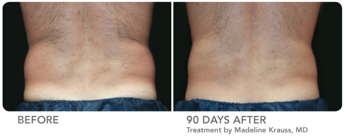 CoolSculpting Non Invasive Fat Removal Spa Thirty Five Boise 10.jpg