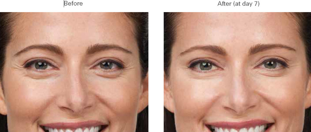 Botox Glabella injection photos