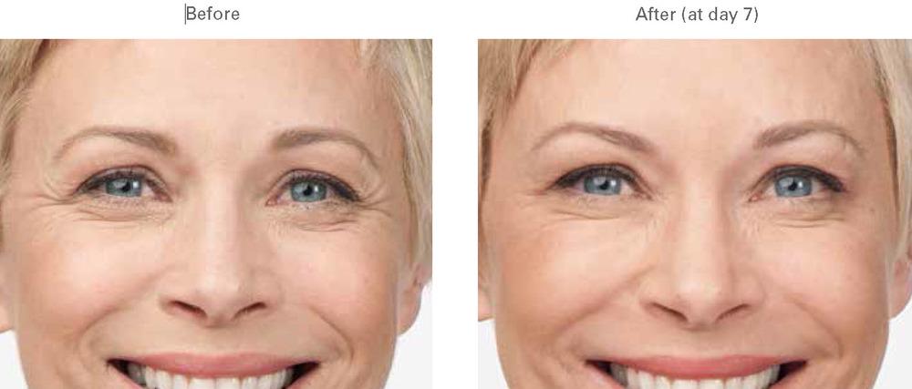 Botox | Remove Wrinkles | Crows Feet, Between Eyes ...