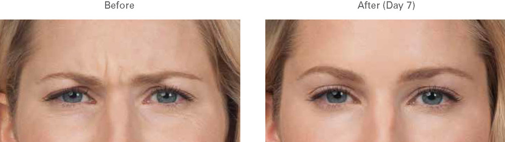 Botox Glabella 1 Spa Thirty Five Boise.jpg