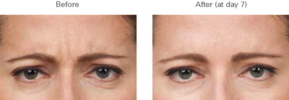 Botox before and after photograph