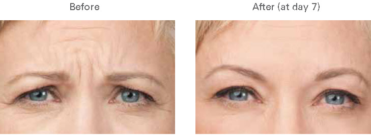 Botox Glabella 3 Spa Thirty Five Boise.jpg