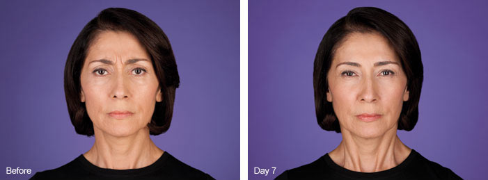 Botox Photo 4 month series Spa Thirty Five