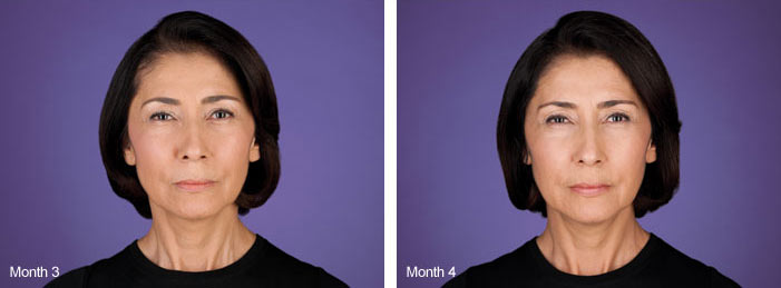 Unretouched photos of paid model  taken at maximum frown  before treatment with BOTOX® Cosmetic (onabotulinumtoxinA) and taken at maximum frown after treatment with BOTOX® Cosmetic at day 7. Individual results may vary