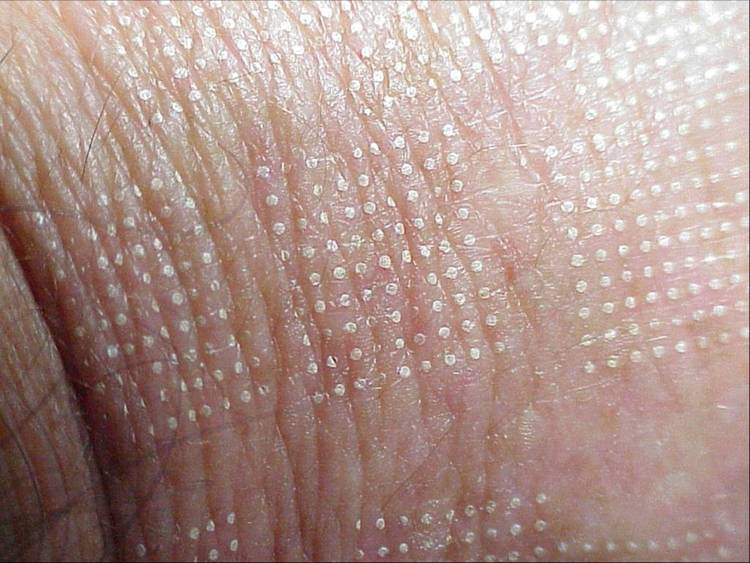 Photograph of fractional skin resurfacing pattern effect. White dots are treated area. undamaged skin between treatment areas speeds healing. density of treated skin can be adjusted based upon patient goals, health and desired recovery time
