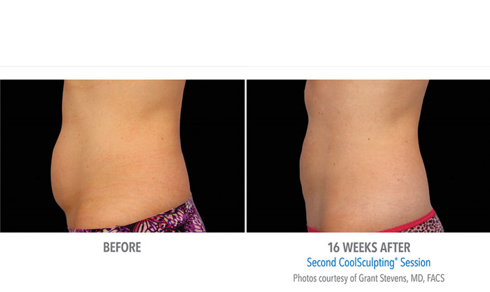 Before and After Photos of Fat Loss From CoolSculpting-Abdomen