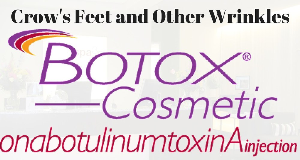Botox Cosmetic for Wrinkles Caused by Muscle Movement Crows Feet