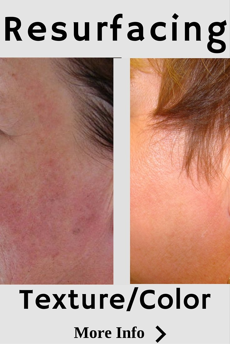 Laser skin resurfacing removes age spots and wrinkles while building collagen for younger looking skin. Usually 3-5 days of downtime. 1-3 treatments in the first year.