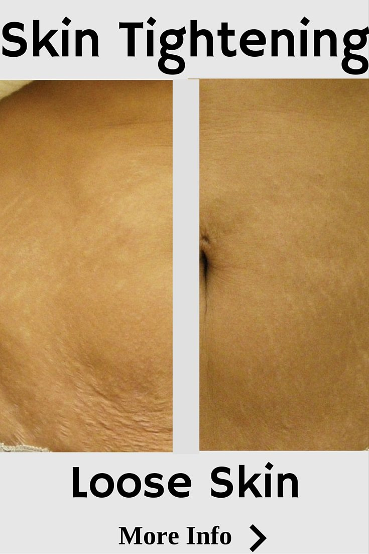 Skin tightening removes wrinkles and loose skin my building collagen with infrared energy