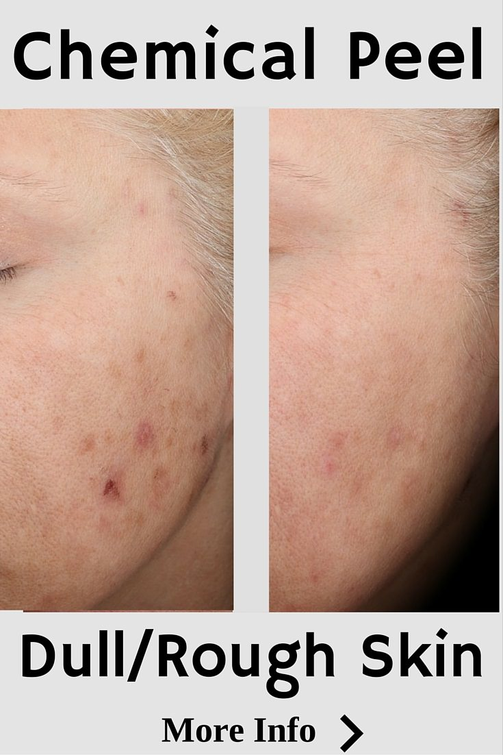 Chemical Peel to Reduce Pigmentation Acne and Increase Texture Smoothness