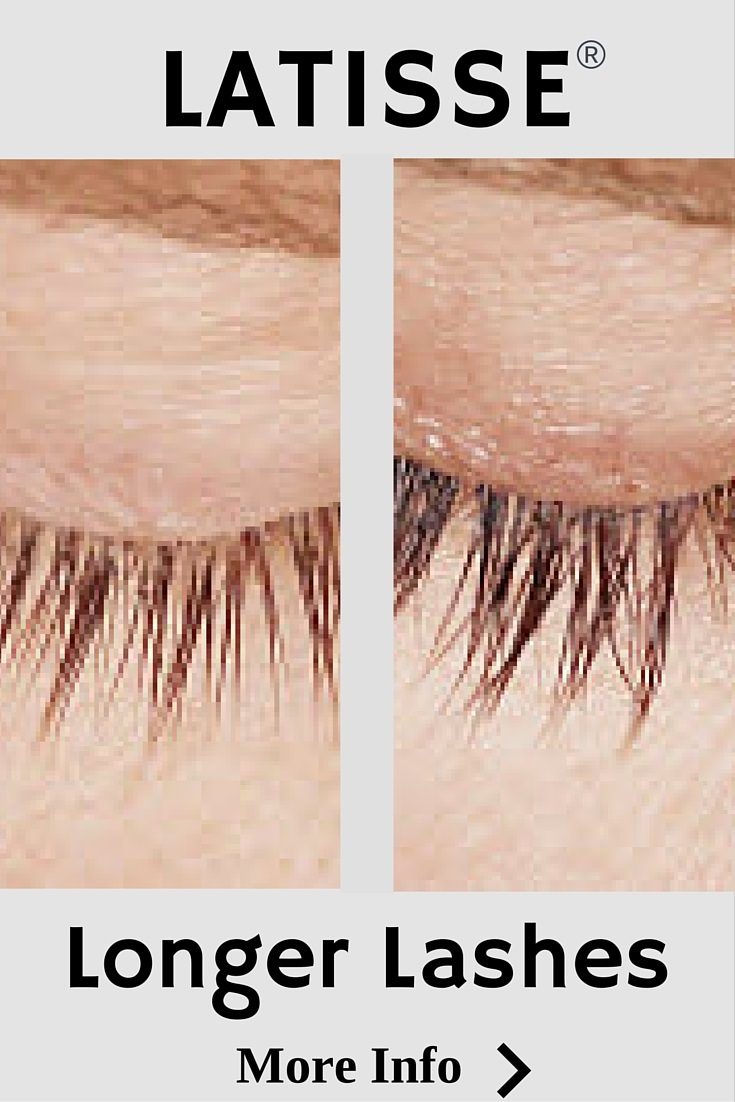 Longer Fuller Lashes with Allergan Latisse