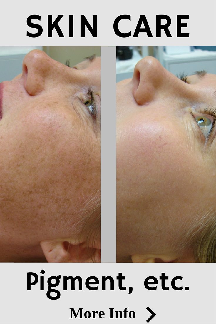 Skin Care to Correct Pigmenation-Grow Collagen-Remove Lines
