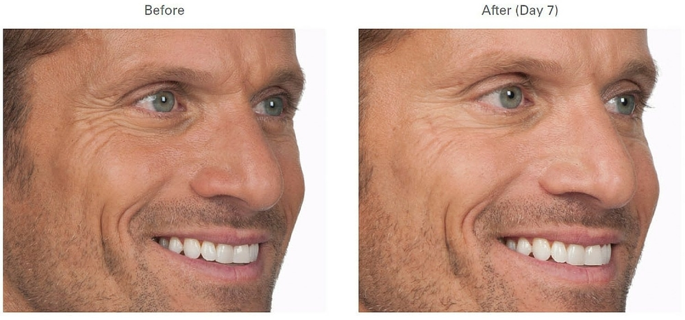 Botox For Men Remove Wrinkles Eyes Forehead Lines Crows Feet