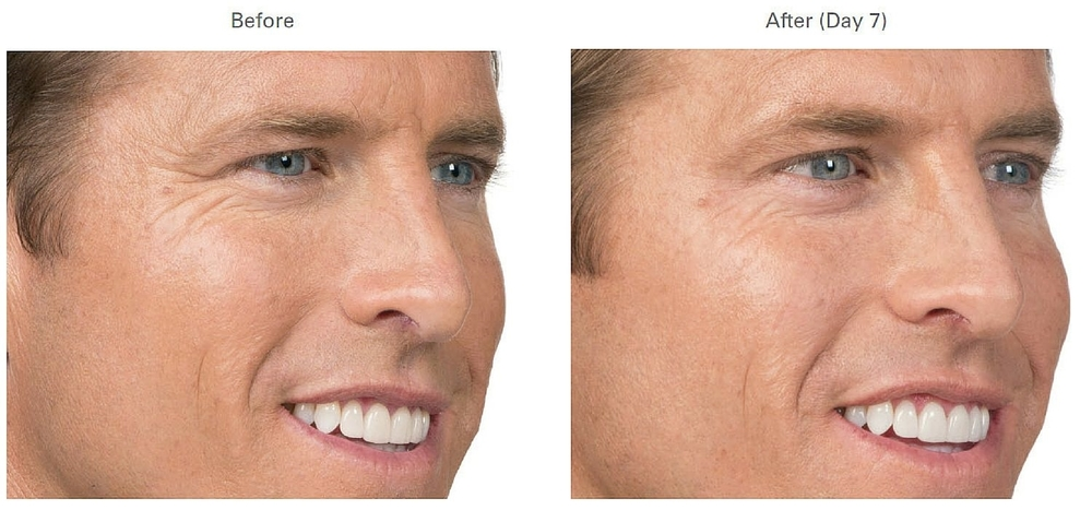 Botox before and after photos in man v2