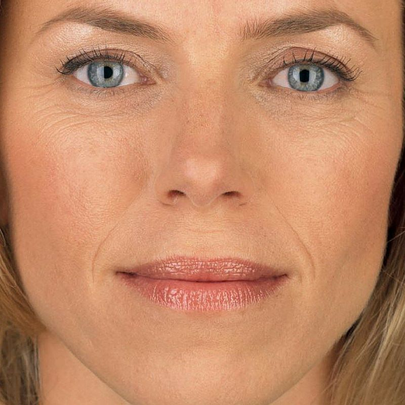 Juvederm for folds around the mouth and lips