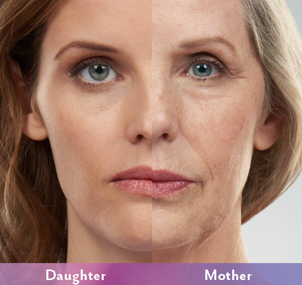 Mother Daughter side by side photo displays changes to the face as we age. Cosmetic dermal fillers replace lost volume in the cheeks, under eye and mouth to roll back aging.