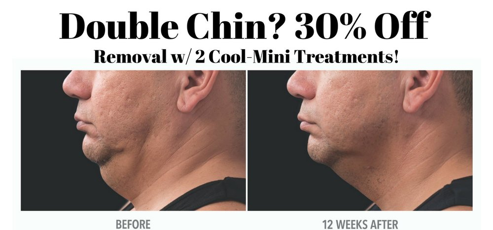 CoolSculplting has a hand piece made just for your double chin. With no downtime and minimal discomfort you can improve the profile that has bothered you for years. For many people no amount of diet change and exercise will every decrease their double chin. Now save 30% when you get two Cool-Mini treatments to maximize your results.