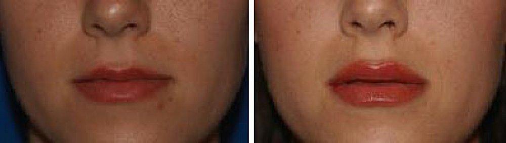 Juvederm lip injection before and after photos spa 35 med spa in boise idaho near the jump center and simplot headquarters