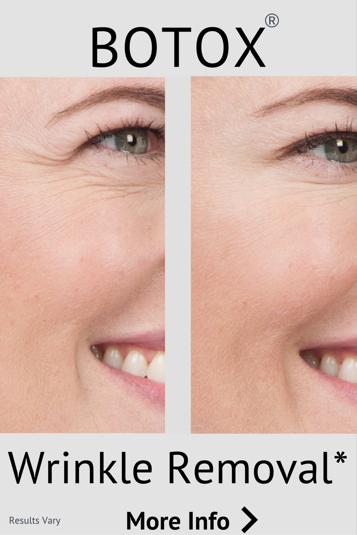 Botox reduces wrinkles from excessive muscle movement. Usually used in the upper face, crow's feet forehead eyes