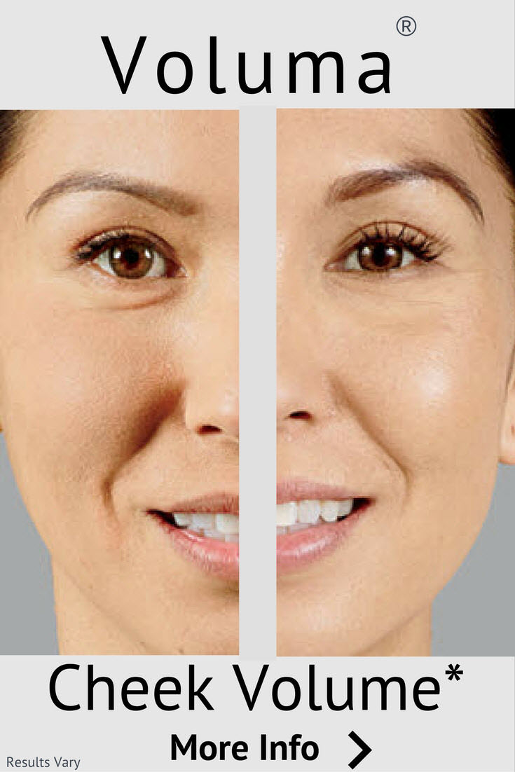Voluma to Return Youthful Volume to Cheeks and Upper Face