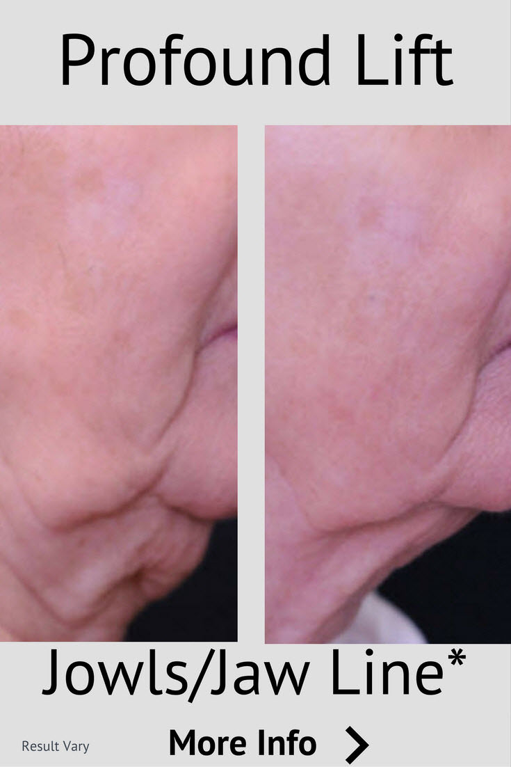 lift sagging skin around the jawline and lower face with the Profound lift energized micro-needles