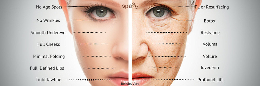 *Results vary by individual. Many common signs of aging can be corrected with minimally invasive treatments. No treatments are PERMANENT.  This image compares the face of a daughter and her mother to display the signs of aging. It is not intended to represent how much younger you'll look after your treatments at Spa 35 Med Spa.